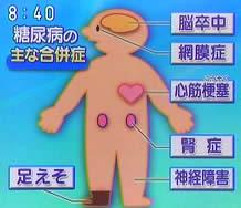 200841diabetes3jpeg11k