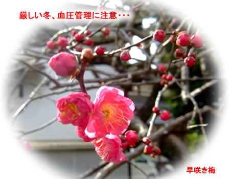 201229hayasakiumejpeg21k